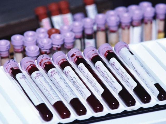распределение крови по пробиркам