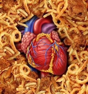 повышен холестерин какой врач