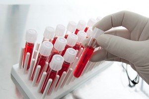 лдг норма в анализе крови