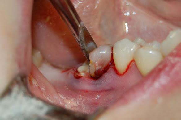 Удаление зуба в домашних условиях