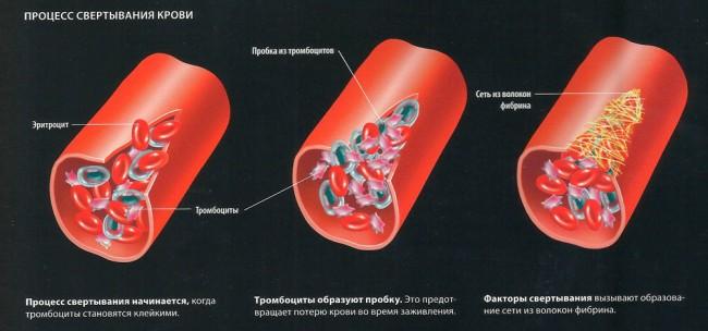 Механизм свёртывания крови