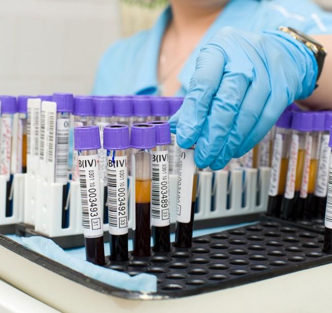 Пробирки с кровью для серологического анализа