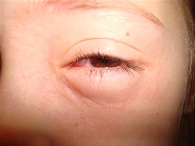 Аллергический отёк глаза