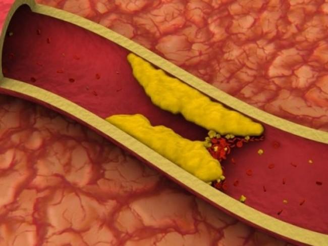 Липопротеиды на стенках сосудов в разрезе