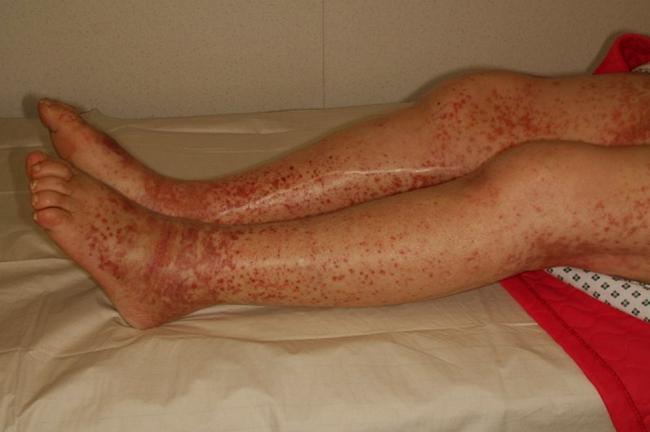 Ноги человека имеющего болезнь Верльгофа