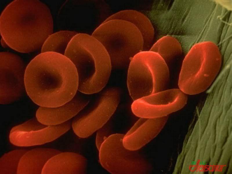 Пониженный гемоглобин у женщин