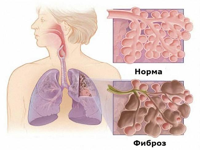 Изображение легких в нормальном состоянии и пораженных фиброзом