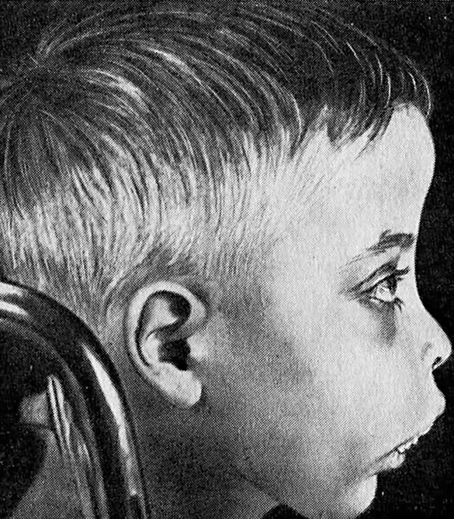 Внешние признаки талассемии у ребёнка