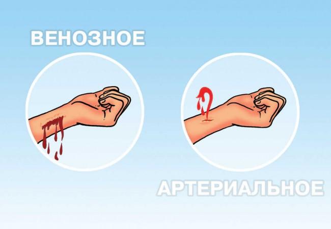 Отличия артериального и венозного кровотечений