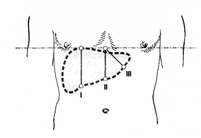 Схема определения размеров печени по Курлову