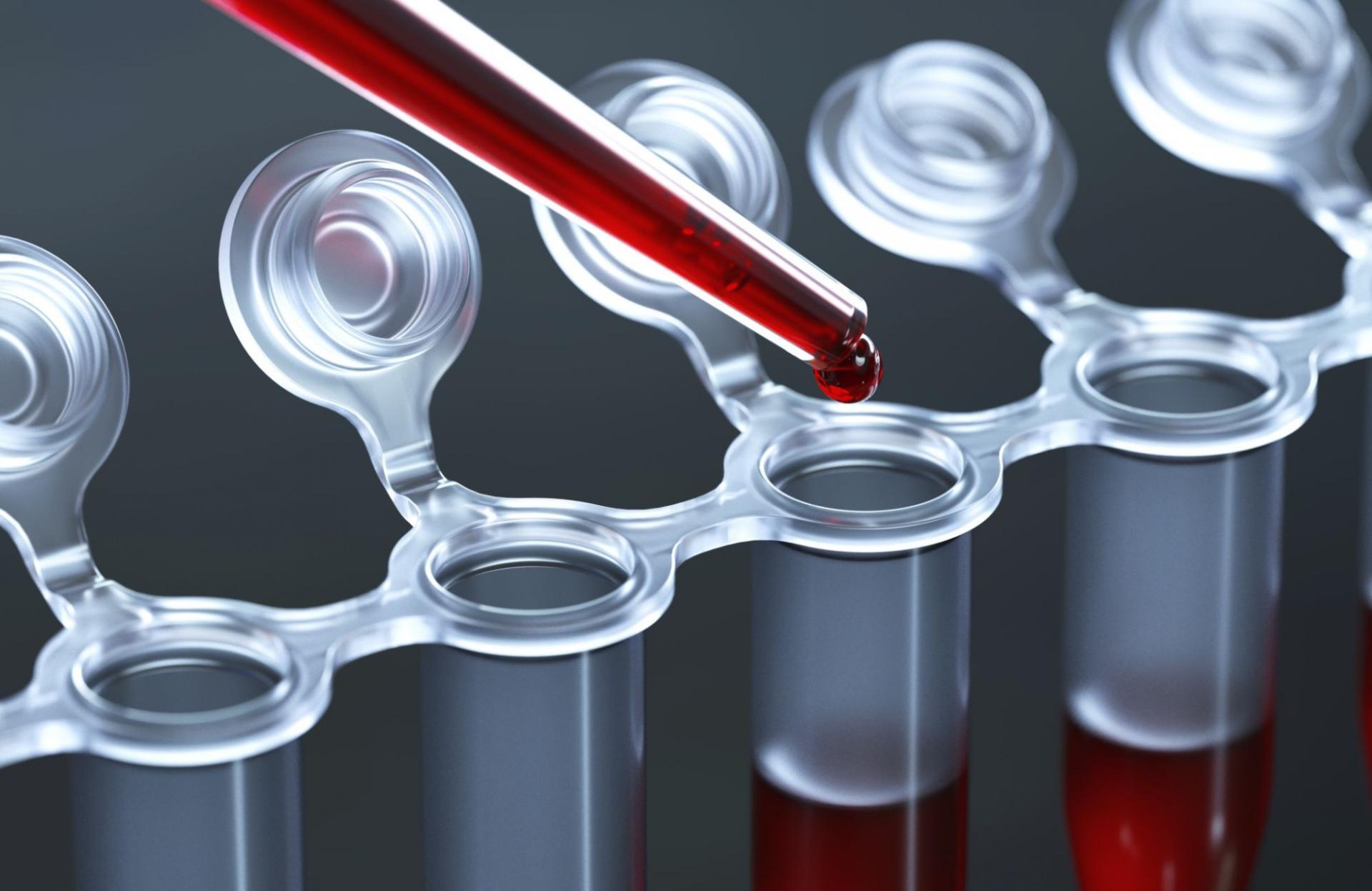 шлюха в анализе крови