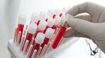 Агрегация тромбоцитов — важный показатель свёртываемости крови