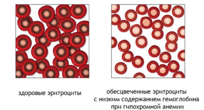 Здоровые и обесцвеченные эритроциты
