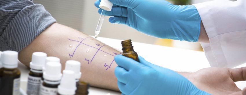 Проведение теста на выявление аллергии
