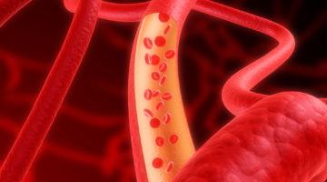Понижаем гемоглобин народными средствами: проверенные методики в действии