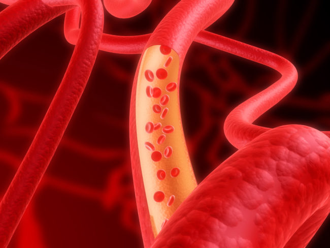 Как снизить гемоглобин в домашних условиях