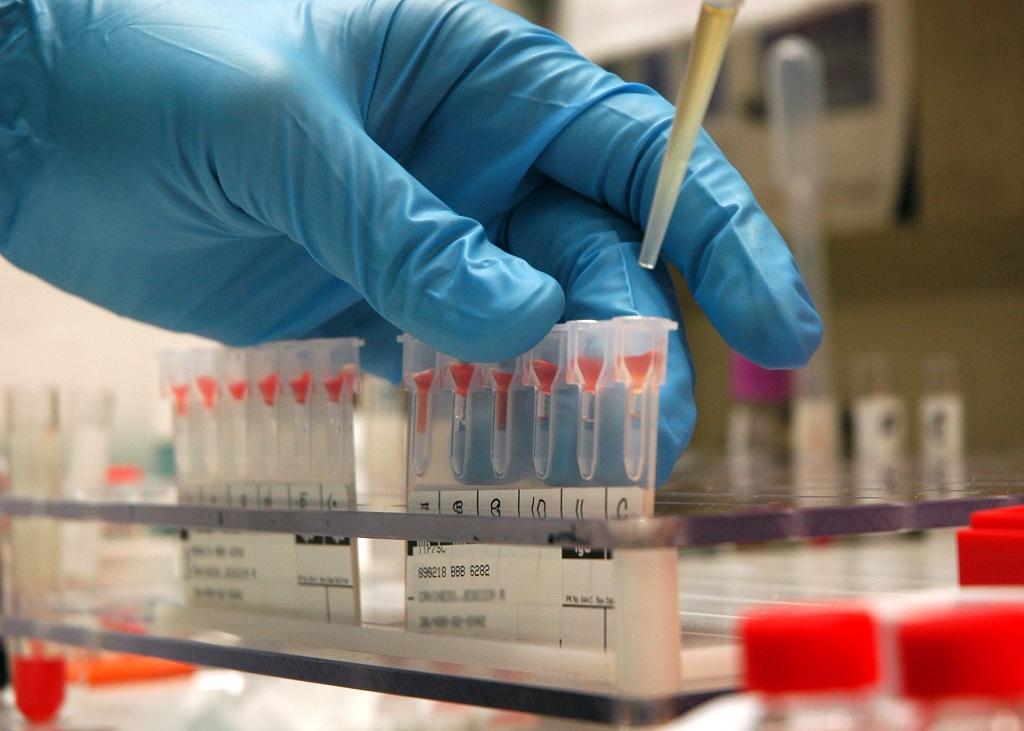 Как влияет отрицательный и положительный резус группы крови на здоровье