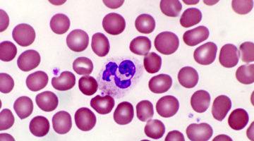 Нормы сегментоядерных нейтрофилов в крови человека