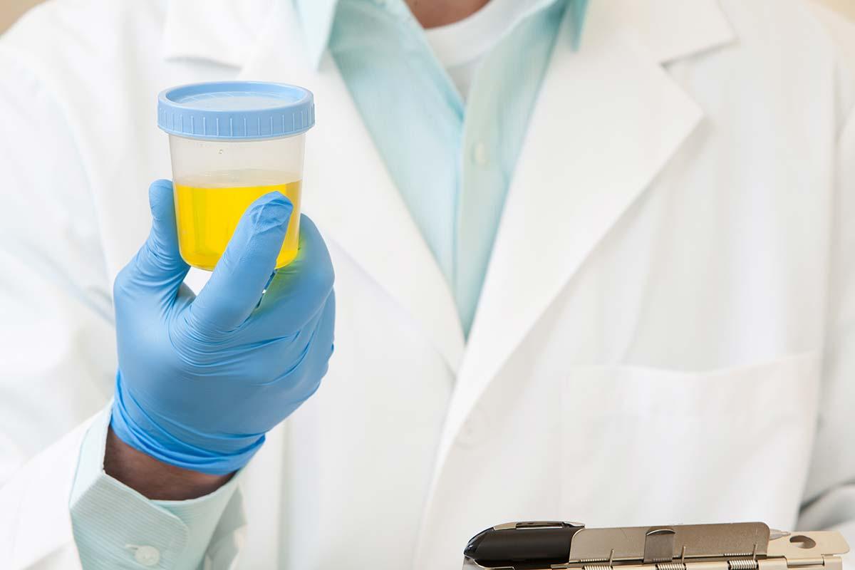Цистит с кровью в конце мочеиспускания у женщин и мужчин – симптомы и лечение 2019