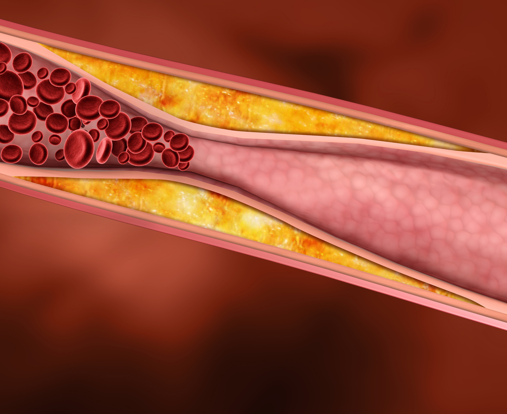 the connection between high blood cholesterol and heart disease