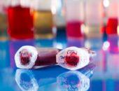 Сохранение пуповинной крови