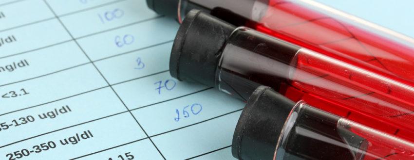 Каковы нормы фибриногена в крови человека и что означает его повышение?