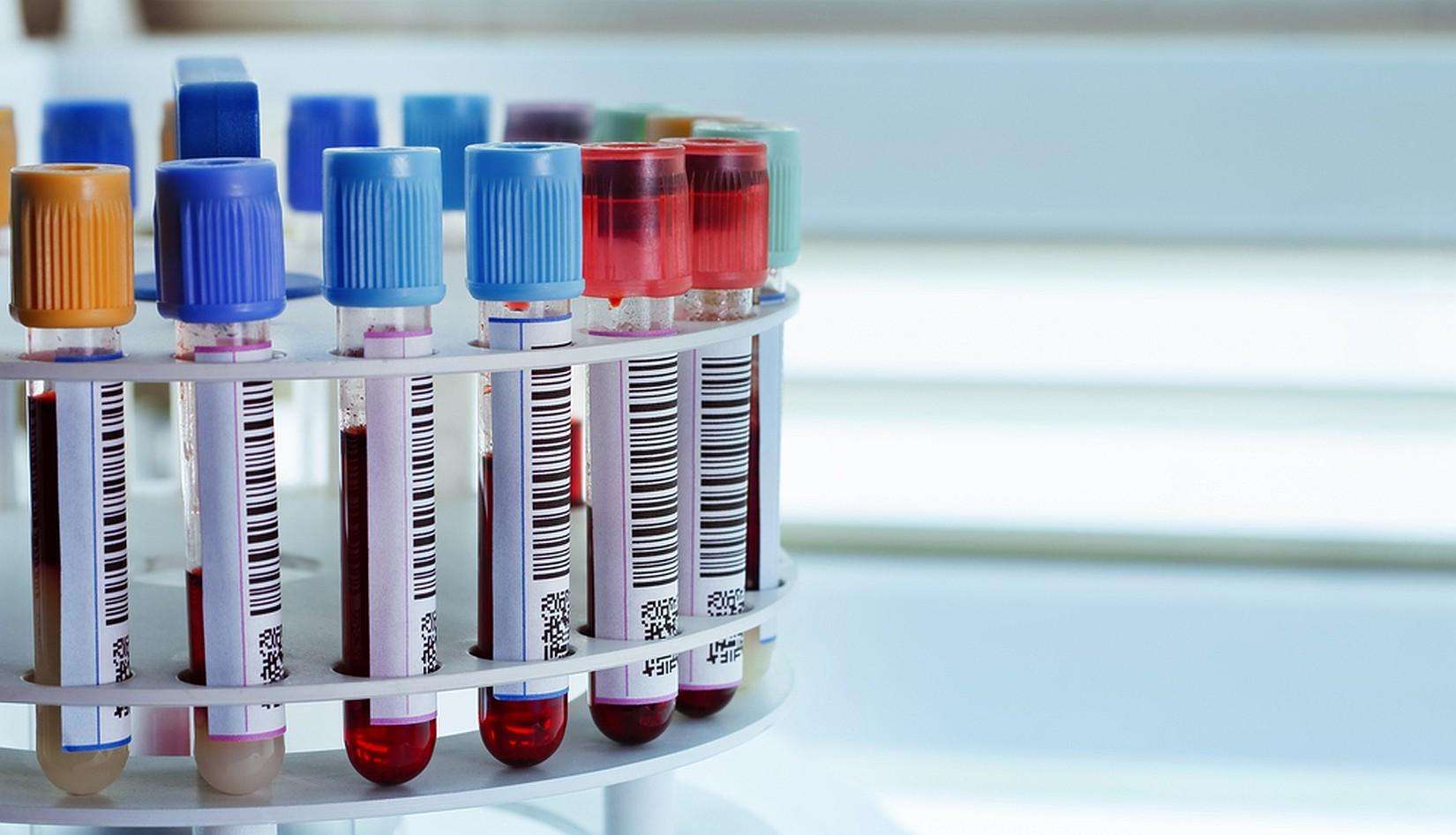 Что такое билирубин и зачем нужно сдавать биохимический анализ на его наличие?
