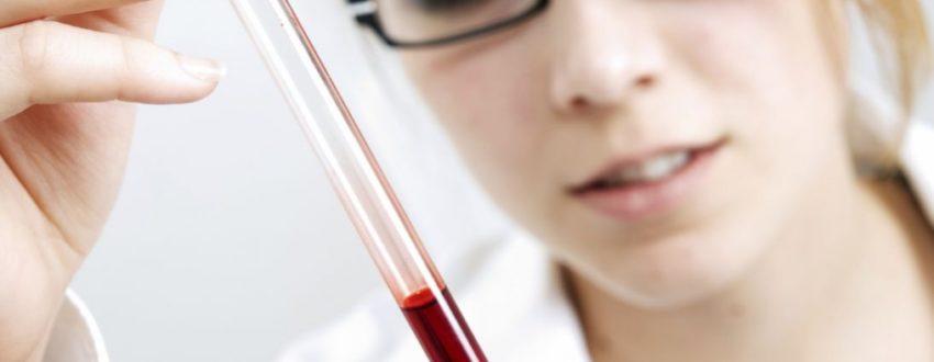 Иммуноглобулин Е в составе крови