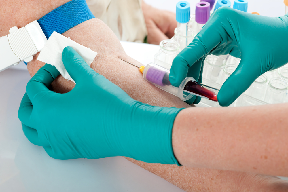 Какими должны быть показатели крови после укуса клеща?