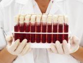 Будущим родителям: важное о резус-факторе и особенностях групп крови