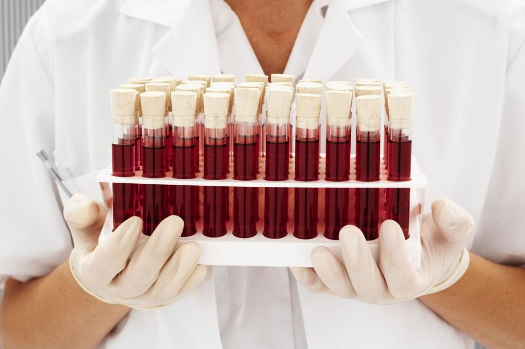 Характер человека по группе крови и резус фактору: как определить, влияние крови на личность