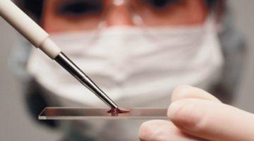 Сгущение крови у женщин в положении