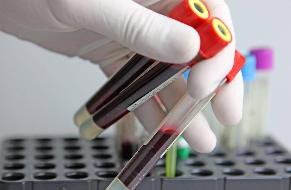 Общий белок и его содержание в человеческой крови