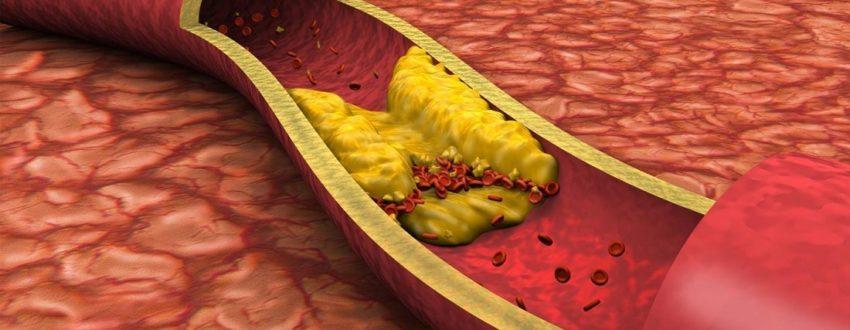 повышен холестерин в 2 раза