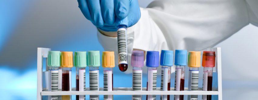 что в анализе крови показывает аллергию