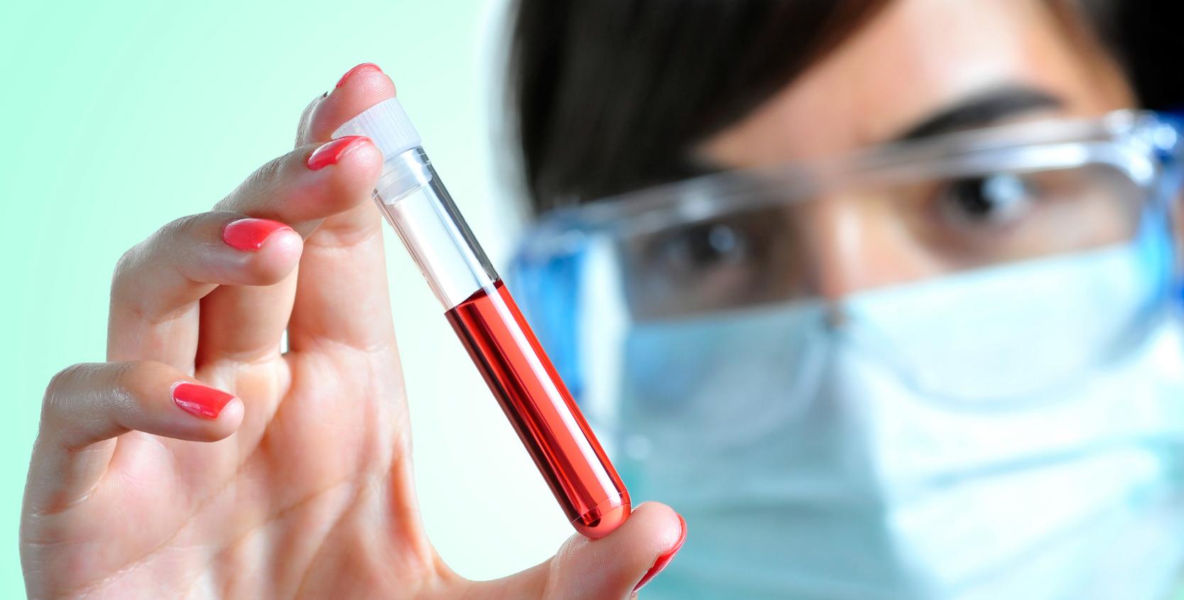 RBC в анализе крови — норма эритроцитов и возможные отклонения