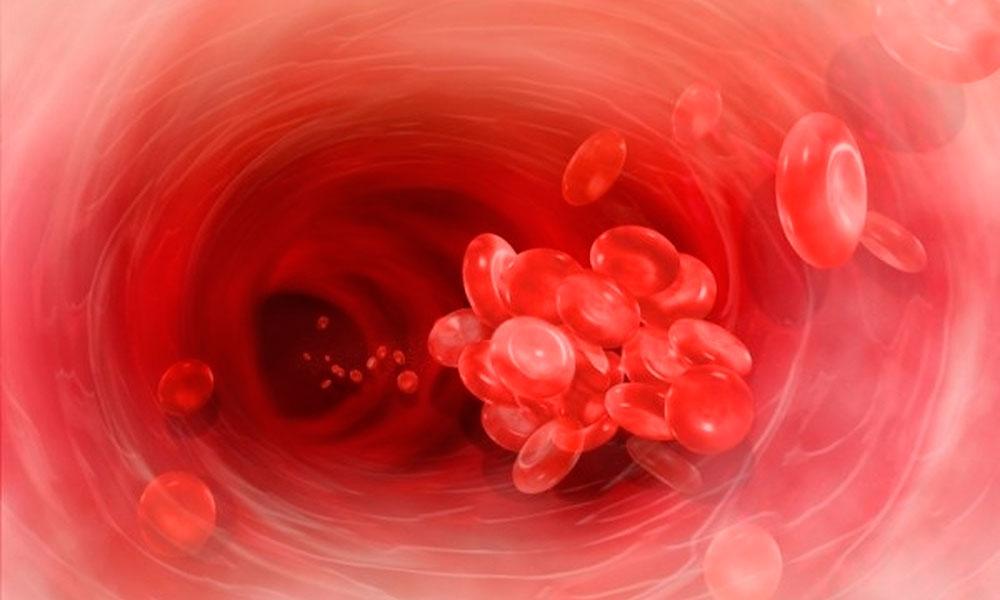 уменьшение уровня холестерина крови