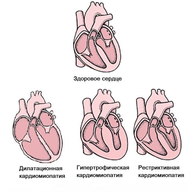 кардиомиопатия схема