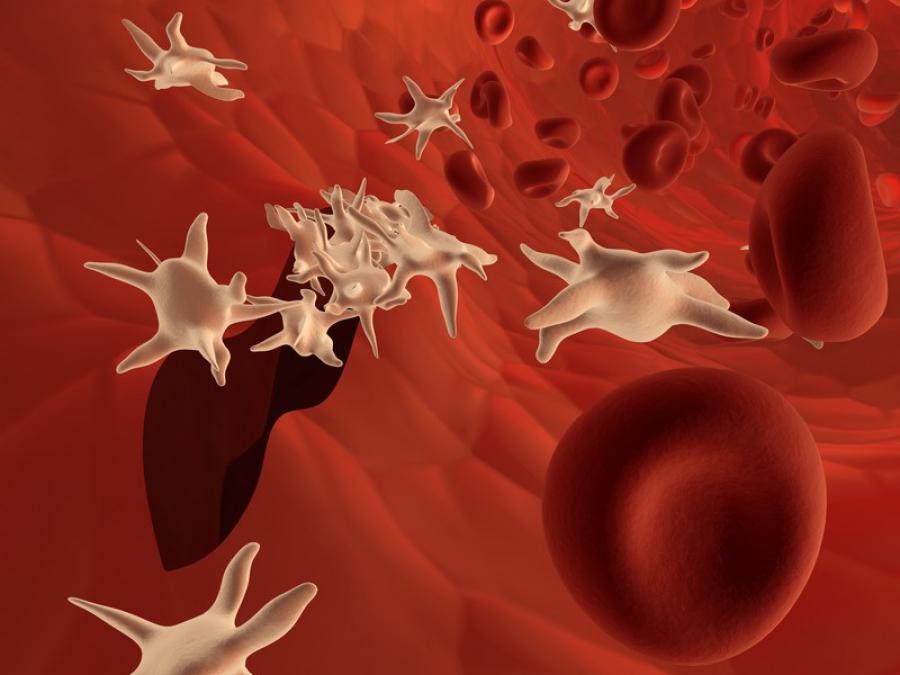 Делают ли операции на сосуды при атеросклерозе