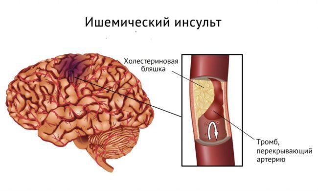 ишемический игсульт