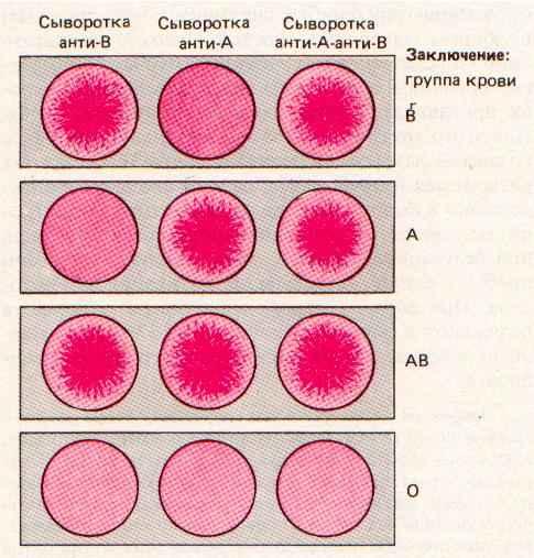 Механизм развития гемотрансфузионного шока