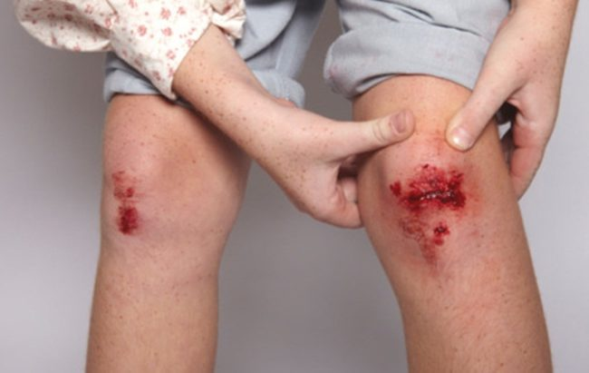 Травма колена и капиллярное кровотечение