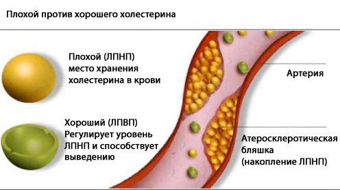 Отличия «плохого» холестерина от «хорошего»
