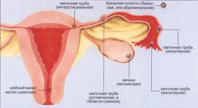 схема внематочной беременности