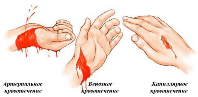 Артериальное, венозное и капиллярное кровотечения