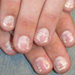 Белесоватые уплотнения на ногтевых пластинках
