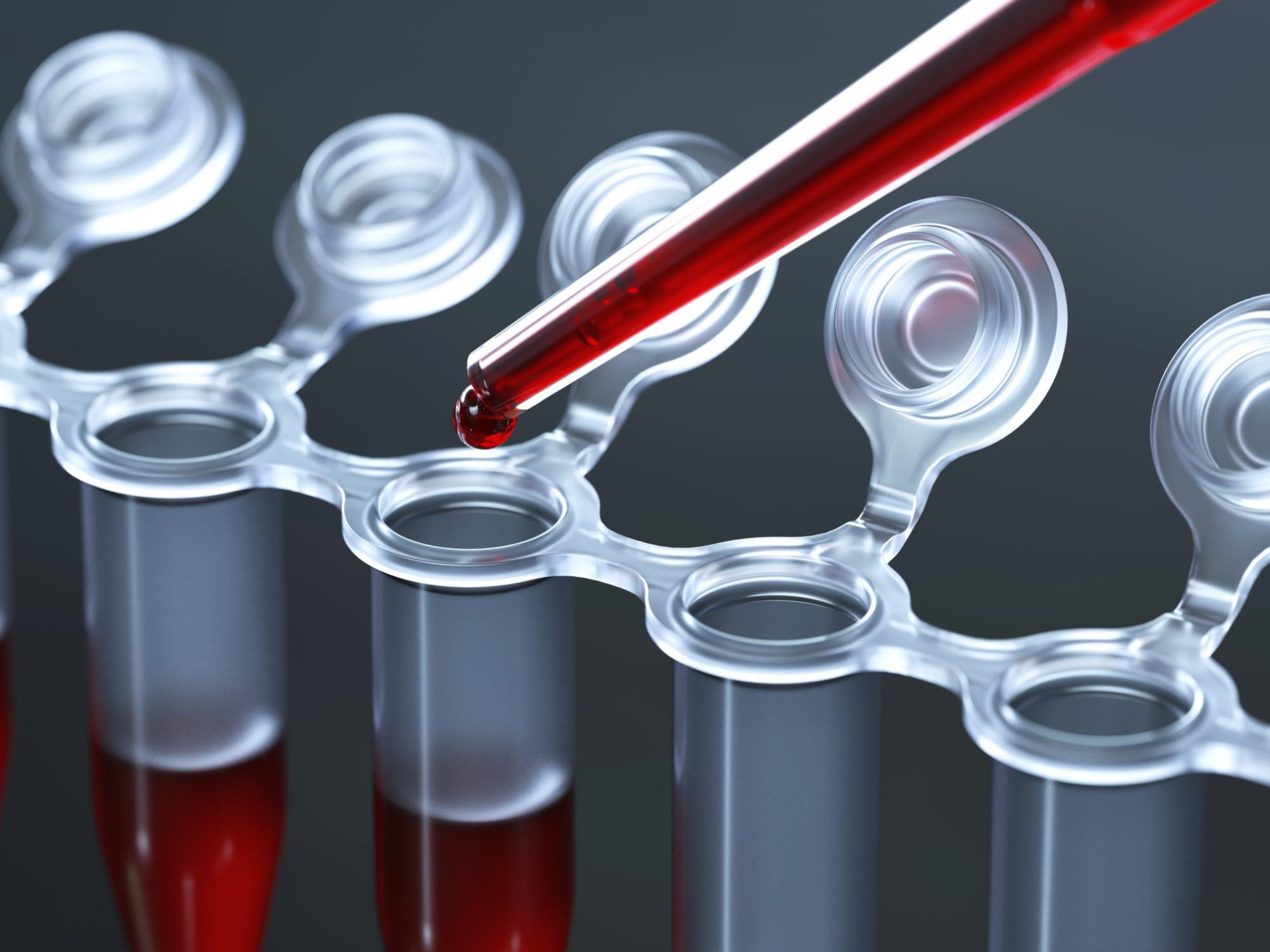 АЛТ и АСТ — что это, норма и причины повышенных показателей в крови