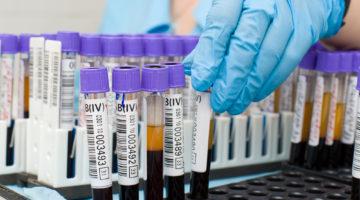 АЛТ и АСТ повышен в анализе крови: что значит, причины таких показателей