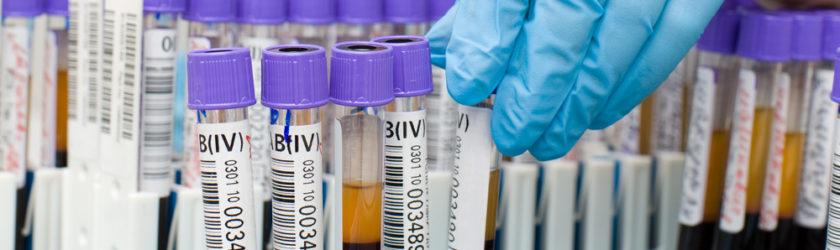 Как проявляется повышение АСТ и АЛТ в крови?