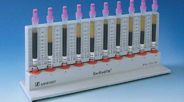 СОЭ в крови: норма по возрасту, причины повышения или снижения